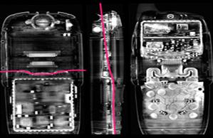 imagen que es una tomografia explicacion